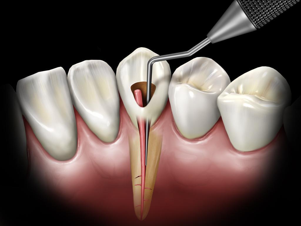 Ząb leczony kanałowo